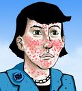 Severe-acne-cartoon-790916