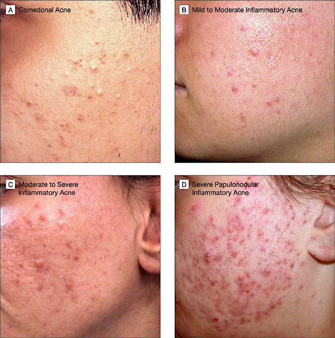 Dermhelpcentral Overview Of Acne Therapy